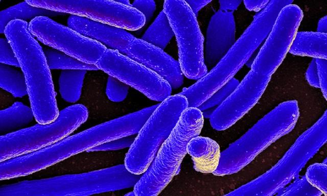 e-coli700.jpg